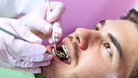 assurances soins dentaires